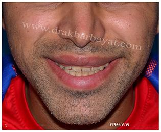 جراحی کوچک کردن دهان