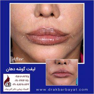 لیفت گوشه دهان | لیفت لب | دکتر اکبر بیات یکی از باسابقه دار ترین جراحان لب در ایران
