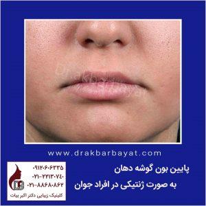 پایین بودن گوشه دهان | جراحی زیبایی لب