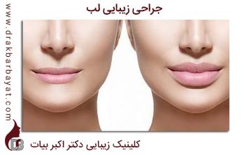 جراحی زیبایی لب | کلینیک زیبایی دکتر اکبر بیات