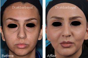 تزریق چربی به صورت | ماندگاری تزریق چربی صورت | عکس تزریق چربی به صورت