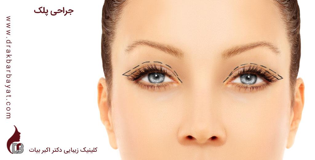 Blepharoplasty | جراحی زیبایی پلک | جراحی اصلاح افتادگی پلک