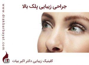 جراحی زیبایی پلک | جراحی اصلاح افتادگی پلک