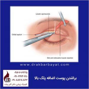 جراحی زیبایی پلک بالا | اصلاح افتادگی پلک