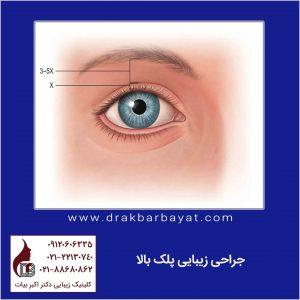 جراحی زیبایی پلک | بلفاروپلاستی