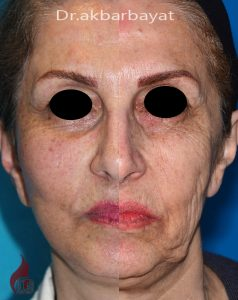 لیفت صورت | بهترین جراح لیفت صورت | لیفتینگ صورت