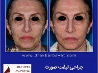 تصاویر قبل و بعد جراحی لیفت صورت و گردن