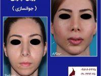 تصاویر قبل و بعد از تزریق چربی - جوانسازی صورت دکتر اکبر بیات
