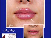 گالری جراحی زیبایی لب | دکتر اکبر بیات