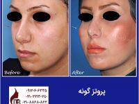 جراحی نصب پروتز گونه| کلینیک زیبایی دکتر اکبر بیات
