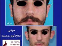 تصاویر قبل و بعد جراحی زیبایی گوش | کلینیک زیبایی دکتر اکبر بیات