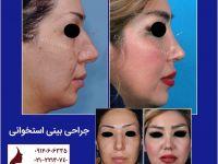گالری تصاویر جراحی بینی استخوانی