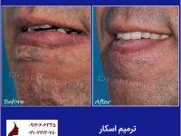 جراحی اسکار | ترمیم اسکار | کلینیک زیبایی دکتر بیات