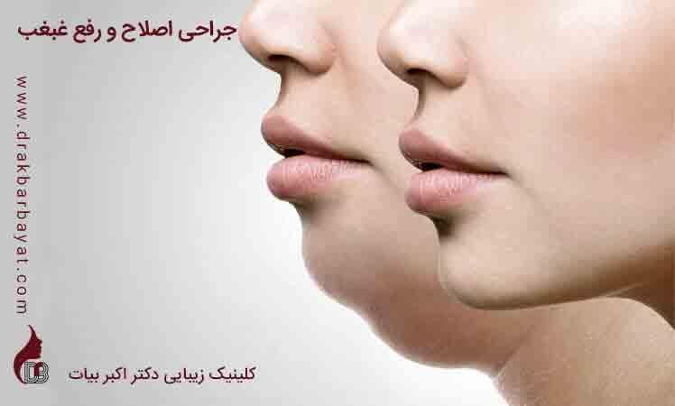 درمان غبغب | جراحی غبغب | رفع غبغب