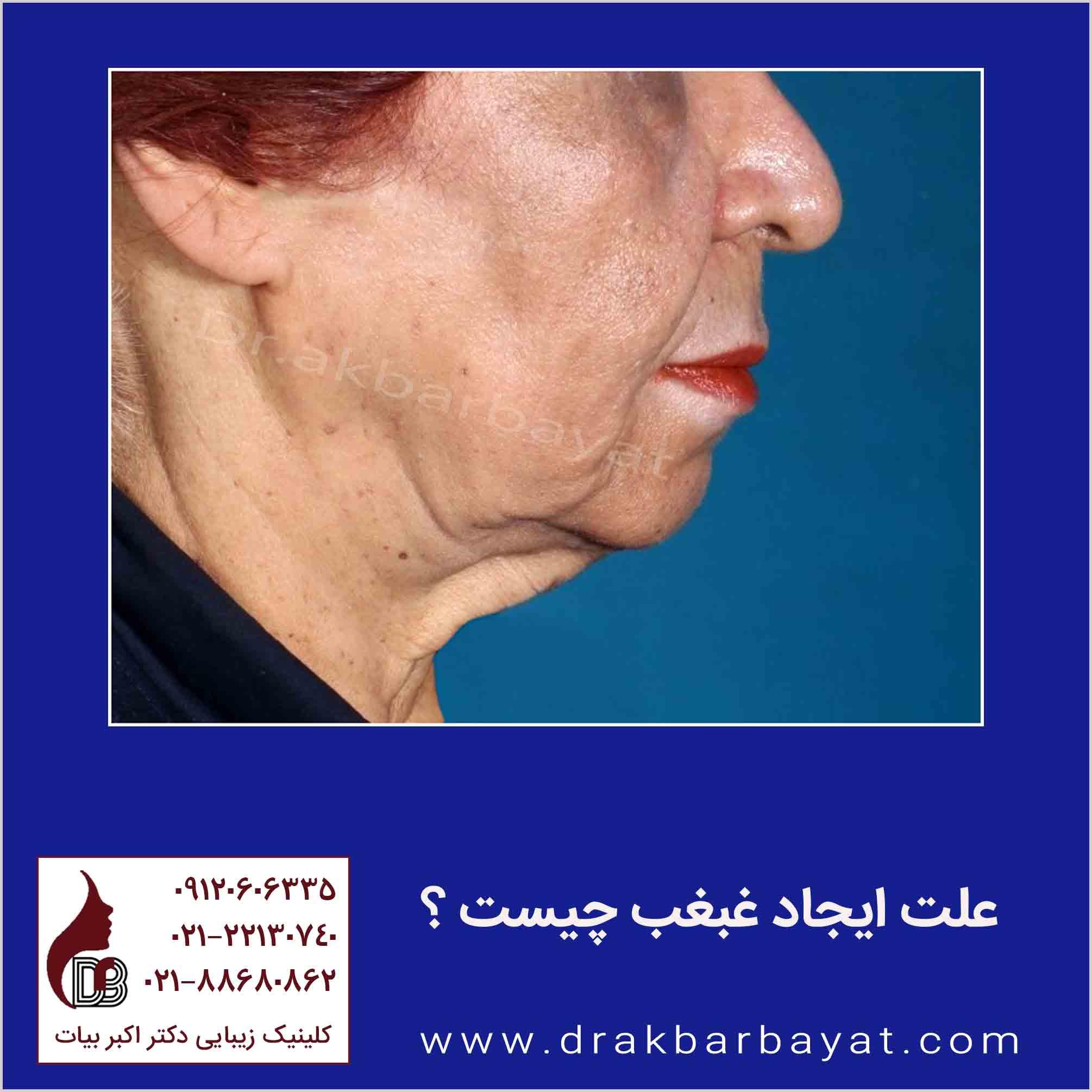 درمان غبغب با جراحی در کلینیک زیبایی دکتر بیات