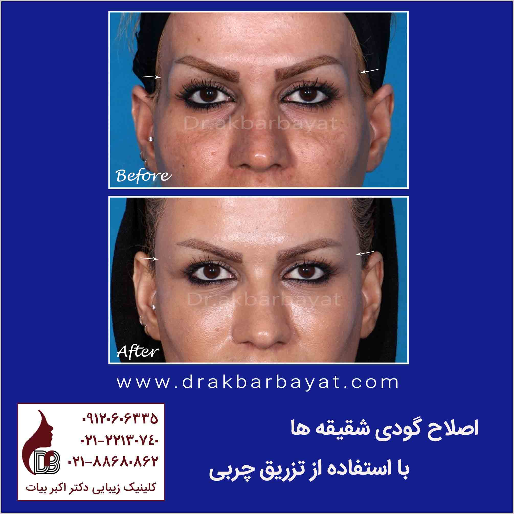 جوانسازی صورت | اصلاح گودی صورت