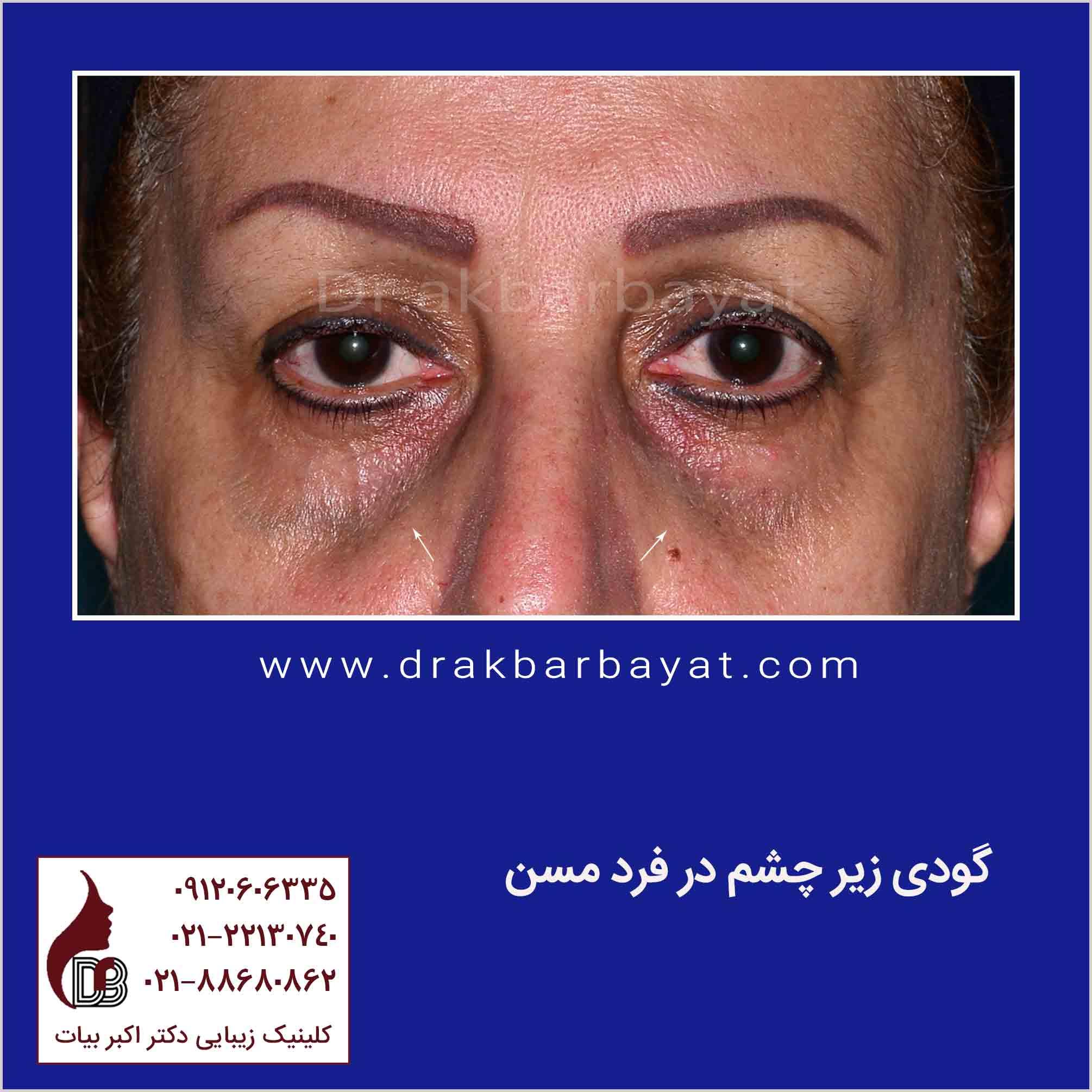 گودی زیر چشم | جوانسازی صورت | جوان سازی صورت