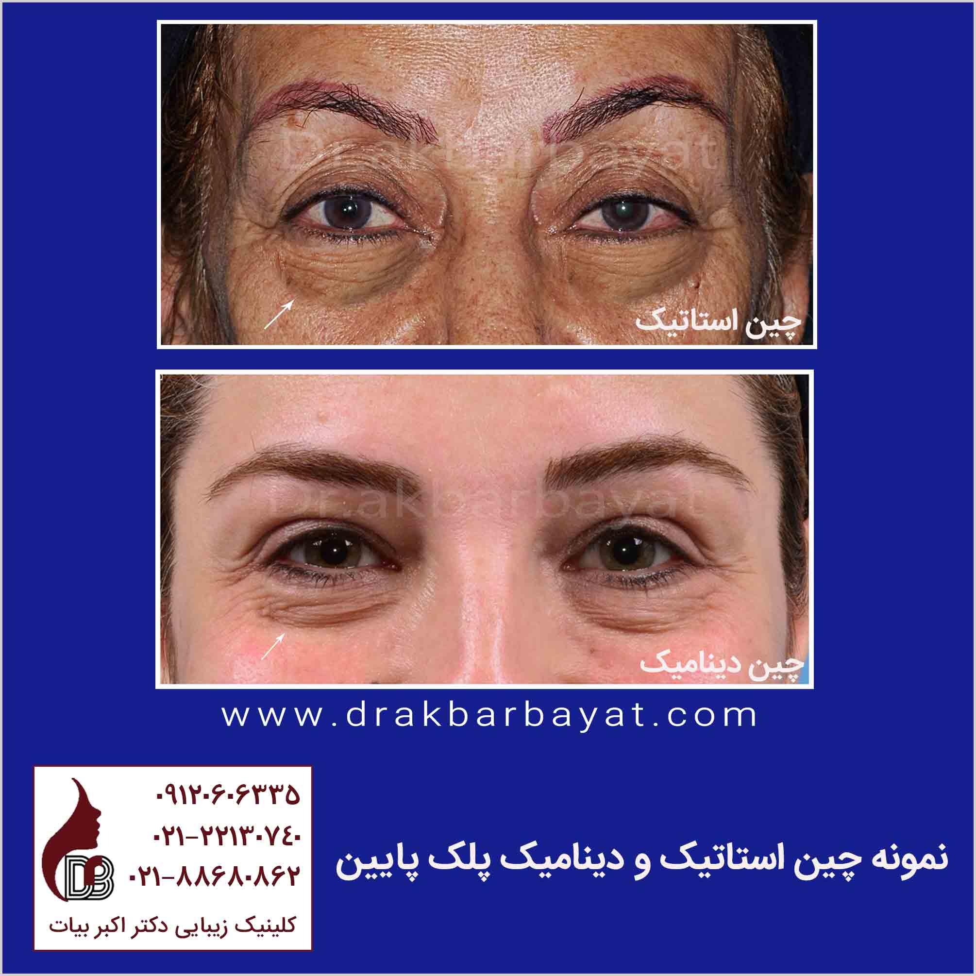 رفع چین های صورت | جوانسازی صورت | جوان سازی صورت