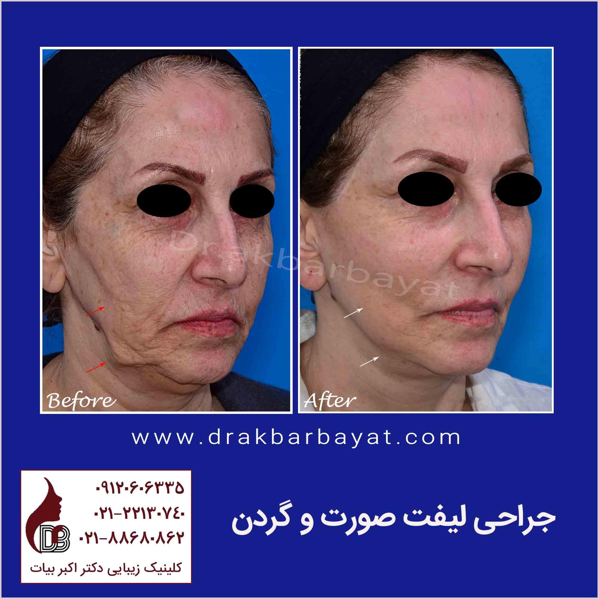 جراحی لیفت صورت و گردن | تصاویر قبل و بعد جراحی