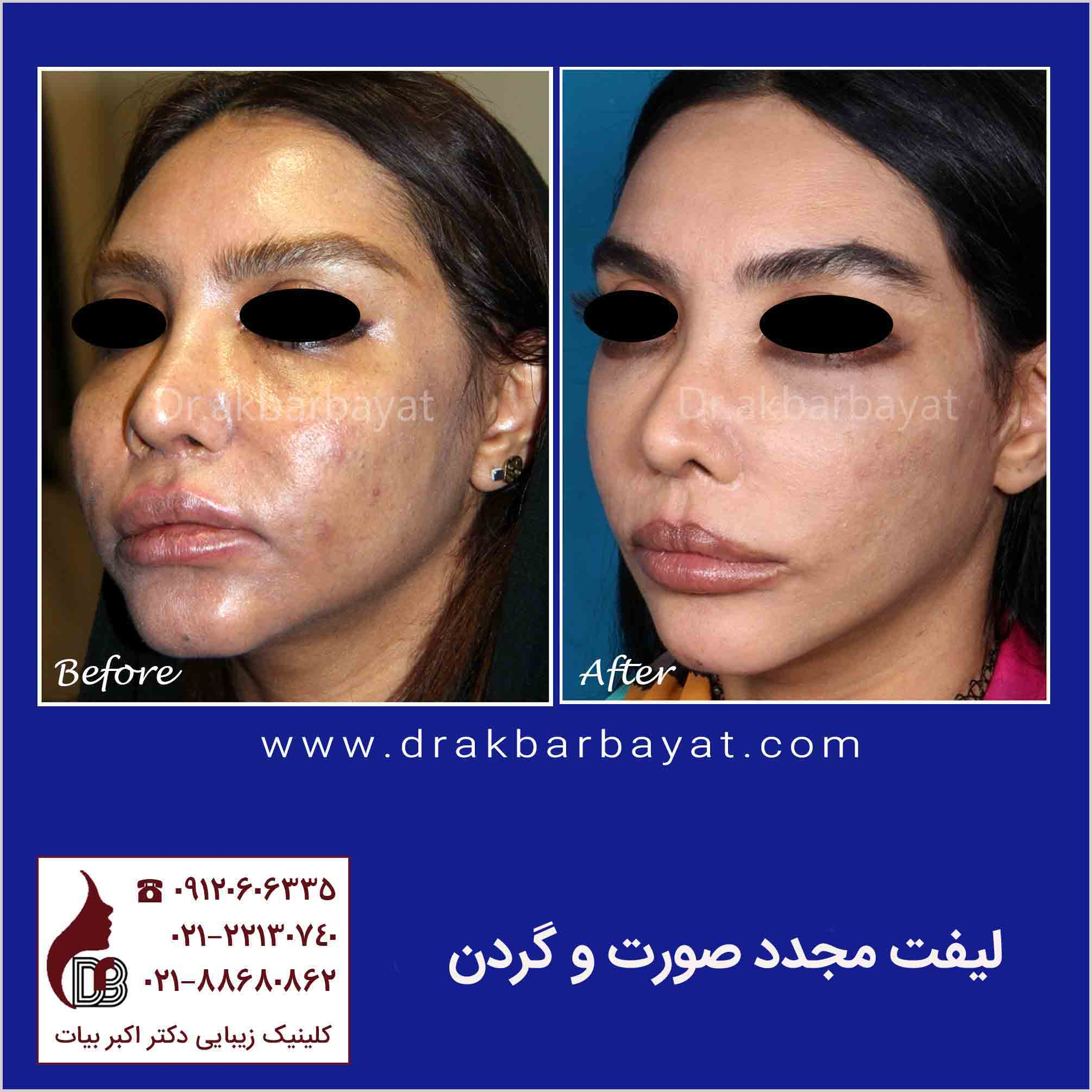 DrakbarBayat-Face Lift   جراحی ترمیمی لیفت صورت   بهترین جراح پلاستیک صورت