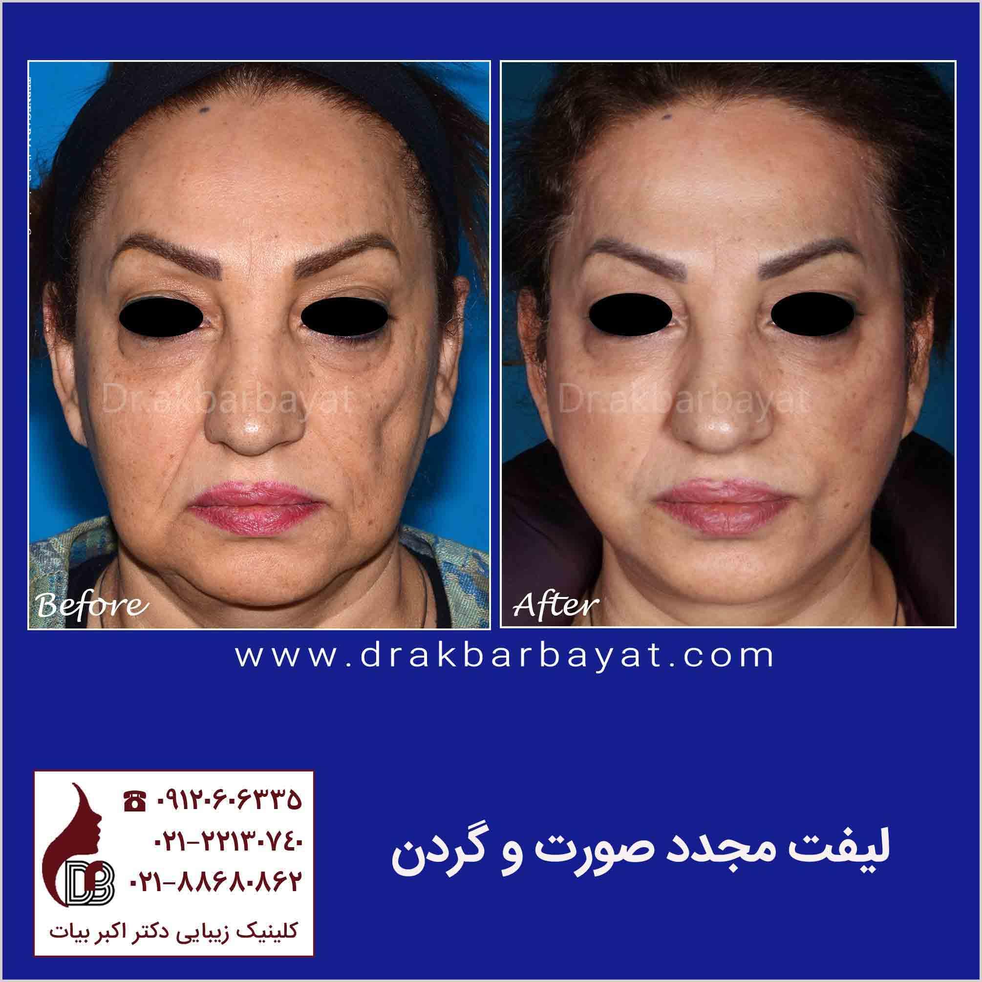 Face Lift Surgery   Iran Rhytidectomy   بهترین مرکز لیفت صورت در تهران