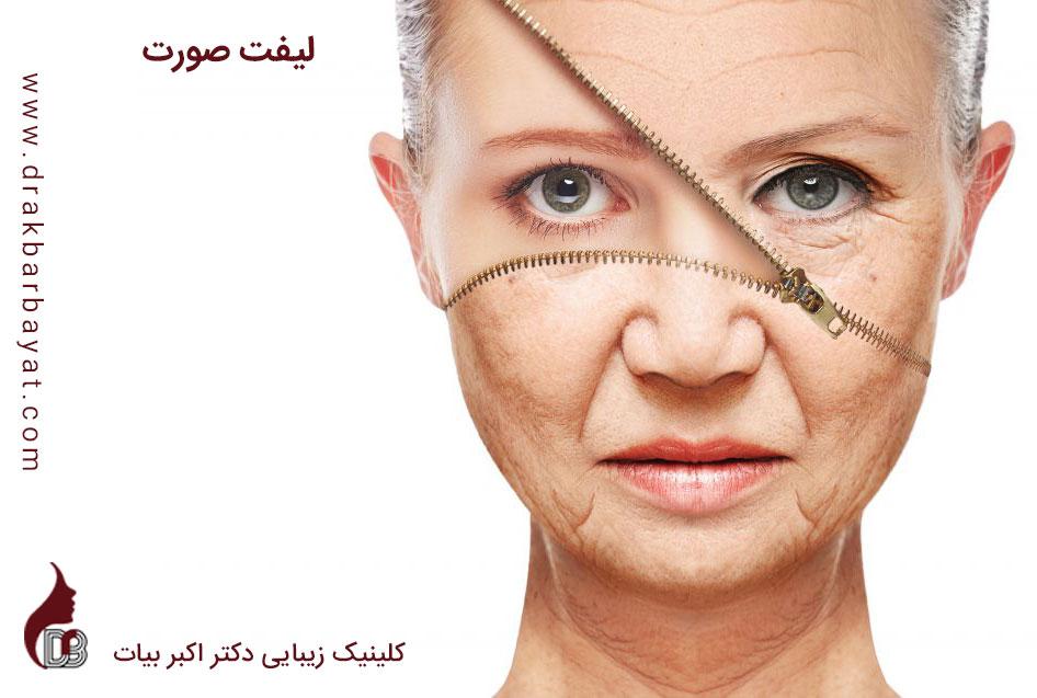 لیفت صورت | لیفتینگ صورت | جوانسازی صورت