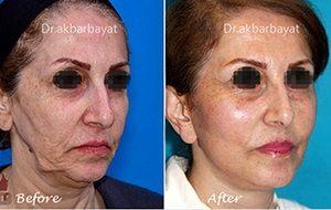 face-neck-lift | جراحی لیفت صورت و گردن | لیفتینگ صورت