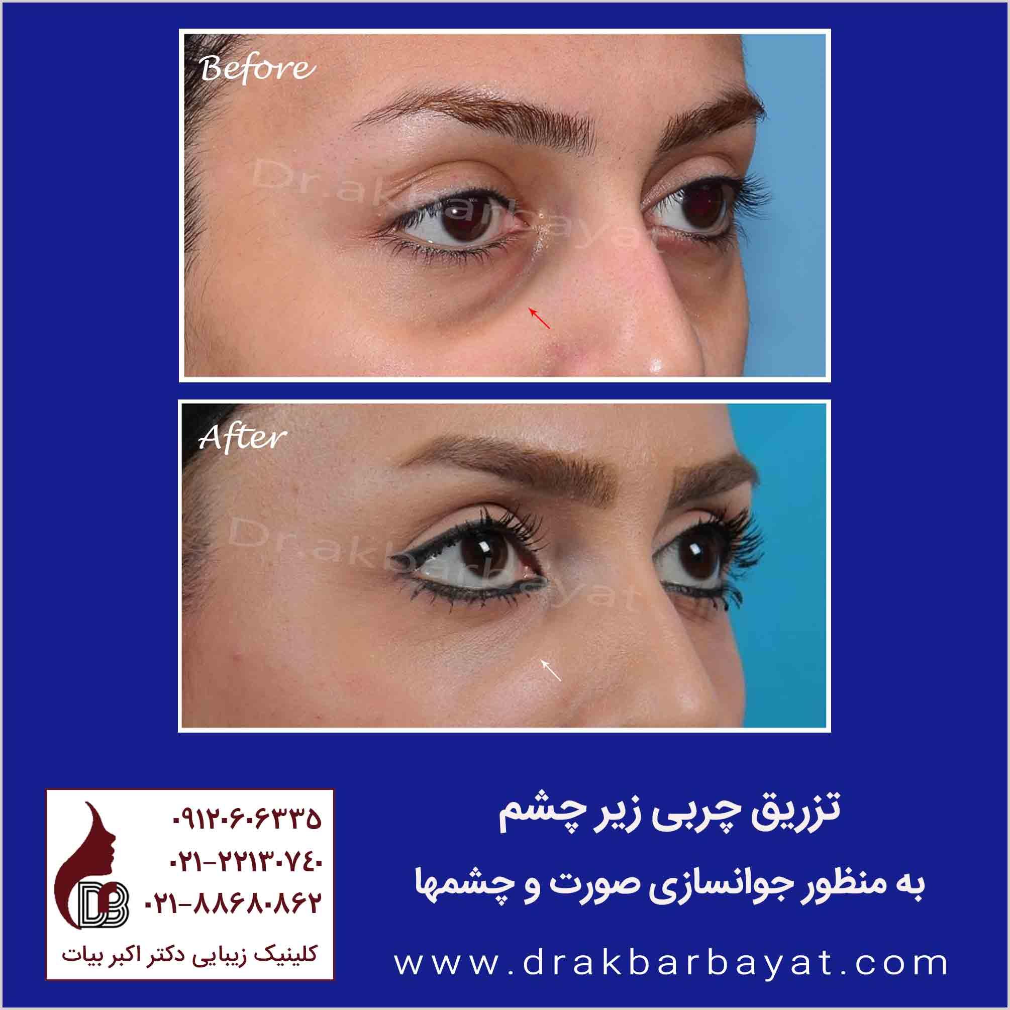 تزریق چربی زیر چشم | مرکز تزریق چربی