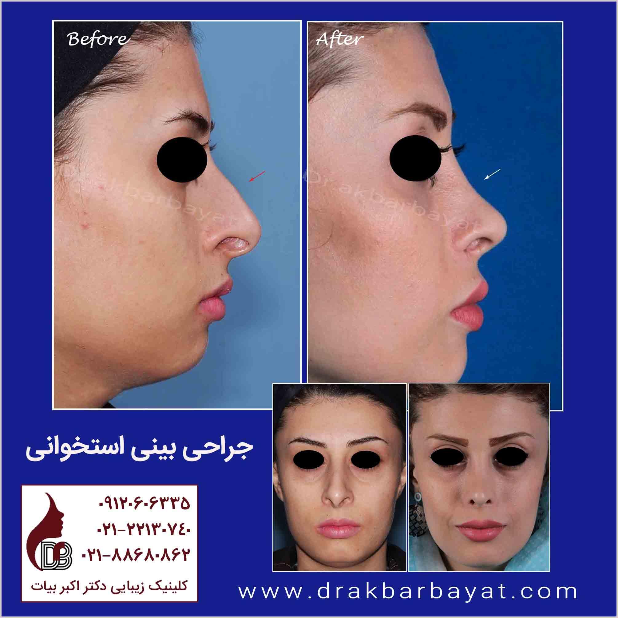 جراحی بینی استخوانی | راینوپلاستی دکتر بیات | عمل جراحی بینی