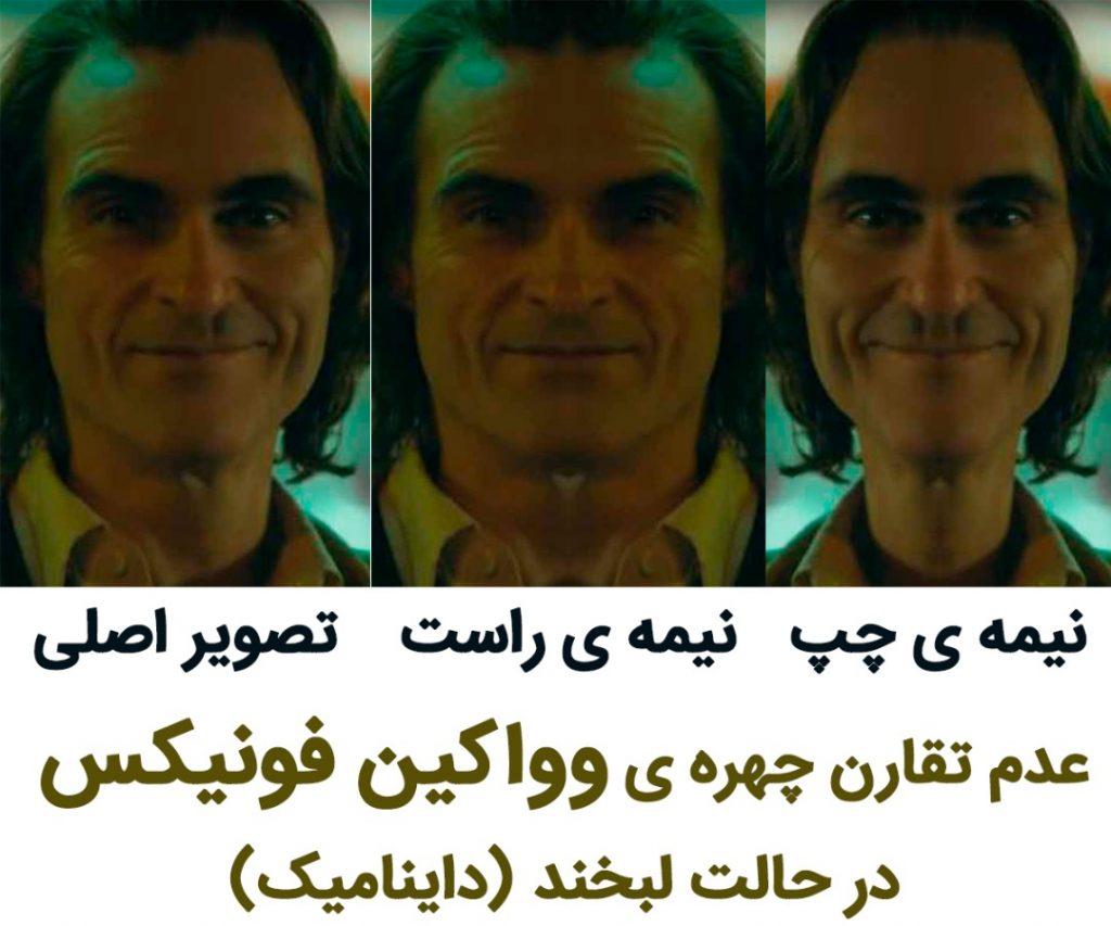 تقارن چهره