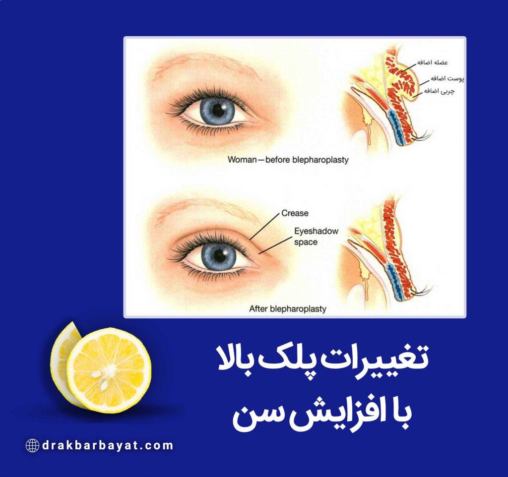 تغییرات پلک بالا با افزایش سن برای جراحی پلک