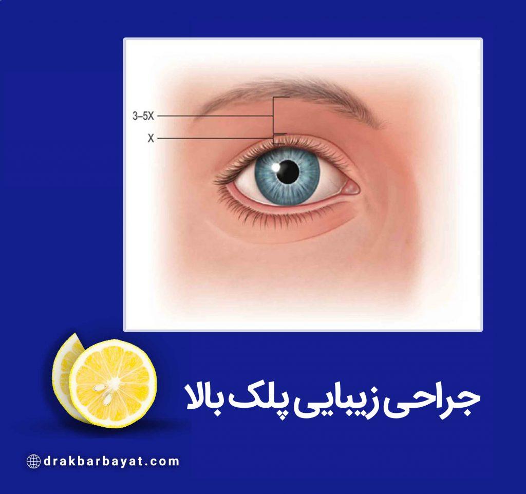 جراحی پلک یا بلفاروپلاستی