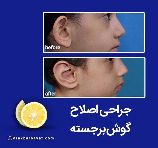 اصلاح گوش برجسته