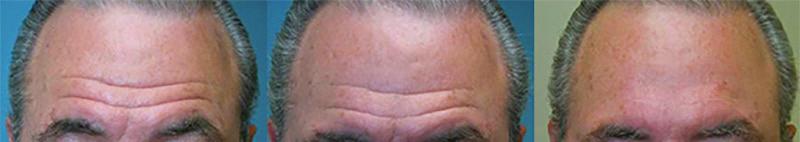 روش لیفت وسط پیشانی (Mid forehead lift)