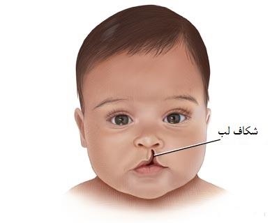 ترمیم شکاف لب | جراحی شکاف لب | دکتر اکبر بیات