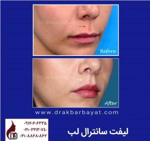 لیفت لب | لیفت سانترال لب | جراحی زیبایی لب | بهترین جراح لب در تهران