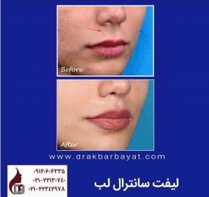 جراحی زیبایی لب | بهترین جراح لب تهران | لیفت لب