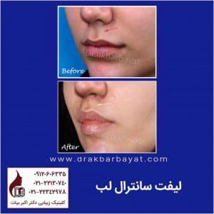 جراحی زیبایی لب   بهترین جراح لب تهران   لیفت لب   لیفت سانترال لب