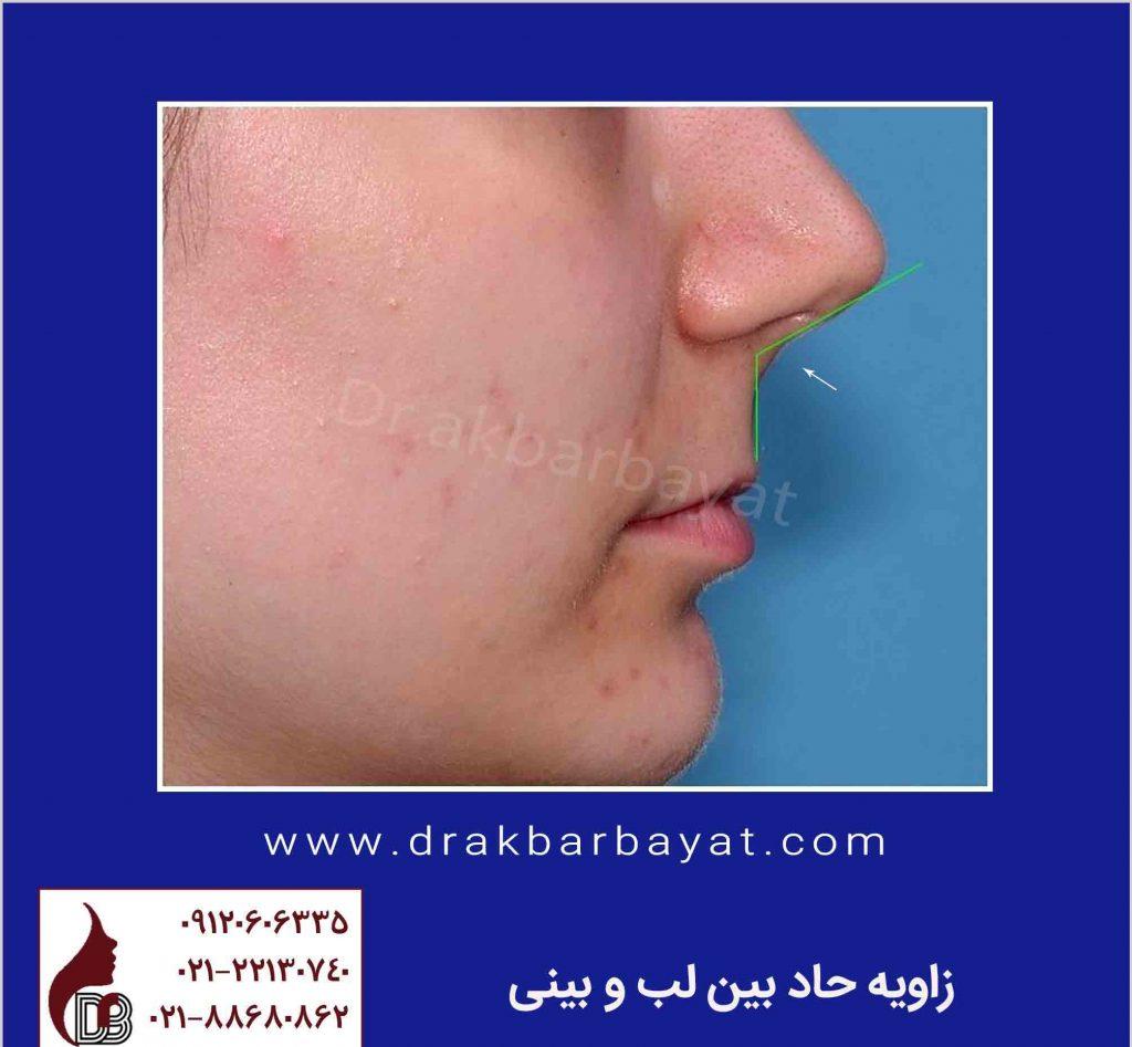 زاویه حاد بین لب و بینی | جراحی زیبایی لب کلینیک زیبایی دکتر اکبر بیات