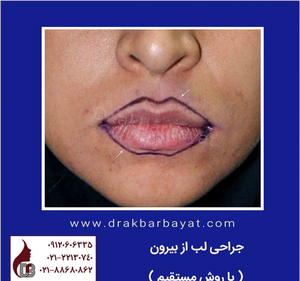 جراحی لب از بیرون | روشهای جراحی زیبایی لب