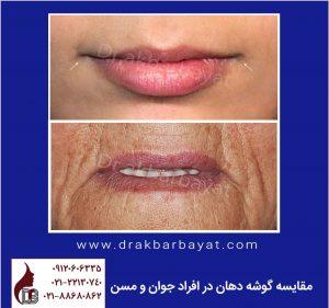 مقایسه گوشه دهان در افراد جوان و مسن | جراحی زیبایی لب