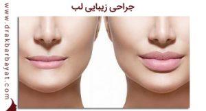 جراحی زیبایی لب | دکتر بیات با سابقه دار ترین جراح لب ایران