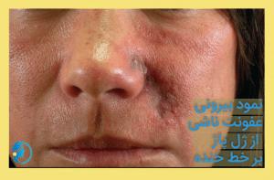 درمان عوارض ژل صورت