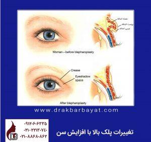 تعییرات پلک بالا با افزایش سن | جراحی زیبایی پلک بالا