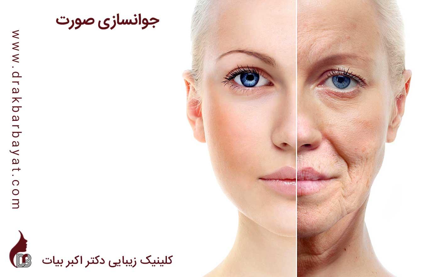 جوانسازی صورت   جوان سازی صورت