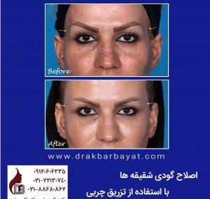 جوانسازی صورت   اصلاح گودی صورت
