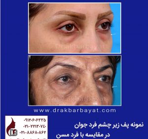 پف زیر چشم | اصلاح پف زیر چشم | جوانسازی صورت