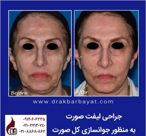 جراحی لیفت صورت|بهترین جراح لیفت صورت