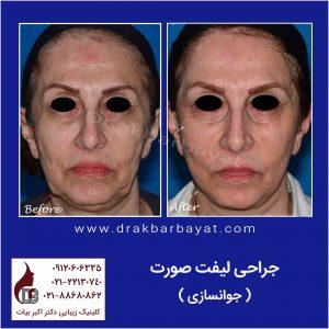 جراحی لیفت صورت و گردن | لیفتینگ صورت | بهترین جراح لیفت صورت در تهران