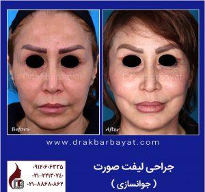 لیفت صورت | لیفت صورت و گردن | جراحی لیفت صورت| بهترین جراح لیفت ایران